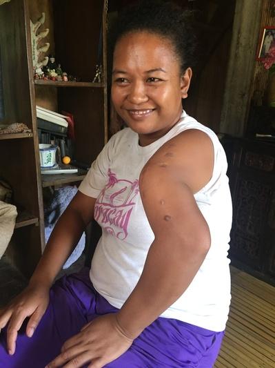 Jessica Pizaro Del Rosario, a due anni dal terribile incidente che l'ha privata del uso di un braccio, racconta la sua storia e quella della sua gente