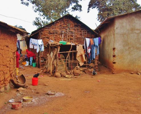 Tanzania_povertà_albinismo